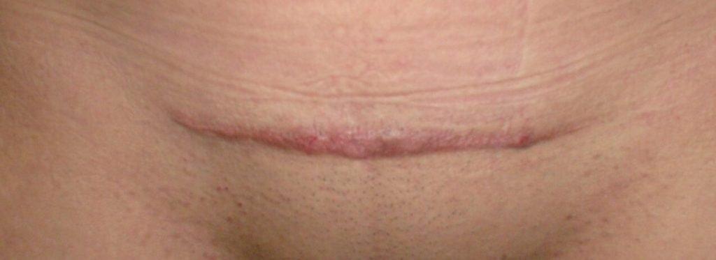 doctor david martinez ramos cirujano general castellon queloide cicatriz hipertrofica