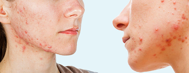 clinica-centro-medicina-estetica-castellon-botox-ipl-hialuronico-rellenos-prp-rosacea-acne-laura-simon-david-martinez