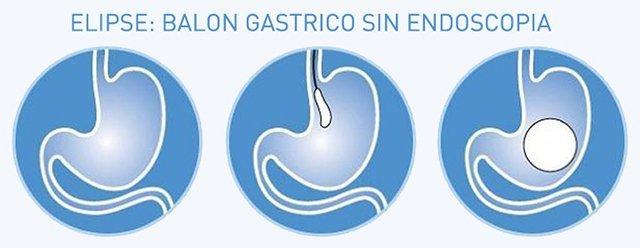 Balon-Gastrico-castellon-ellipse-obesidad-medicina-estetica-laura-simon-david-martinez