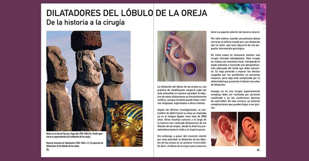 Dilatadores-lobulo-oreja-reconstruccion-cirugia-castellon-laura-simon-david-martinez