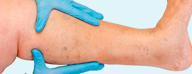 varices-aranas-vasculares-cirugia-castellon-centro-clinica-estetica-botox-prp-rellenos-hialuronico-laura-simon-david-martinez