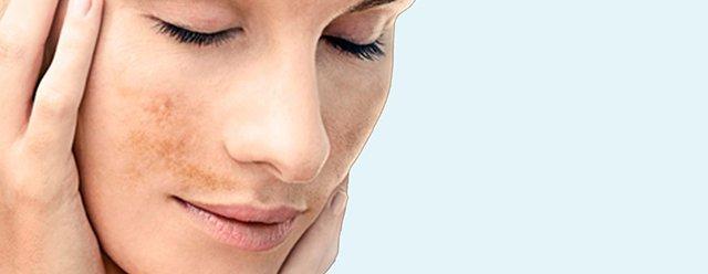 clinica-centro-medicina-estetica-castellon-manchas-piel-laser-ipl-botox-prp-rellenos-hialuronico-laura-simon-david-martinez