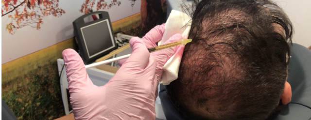 injerto-capilar-castellon-trasplante-capilar-centro-clinica-medicina-estetica-laura-simon-martinez-ramos