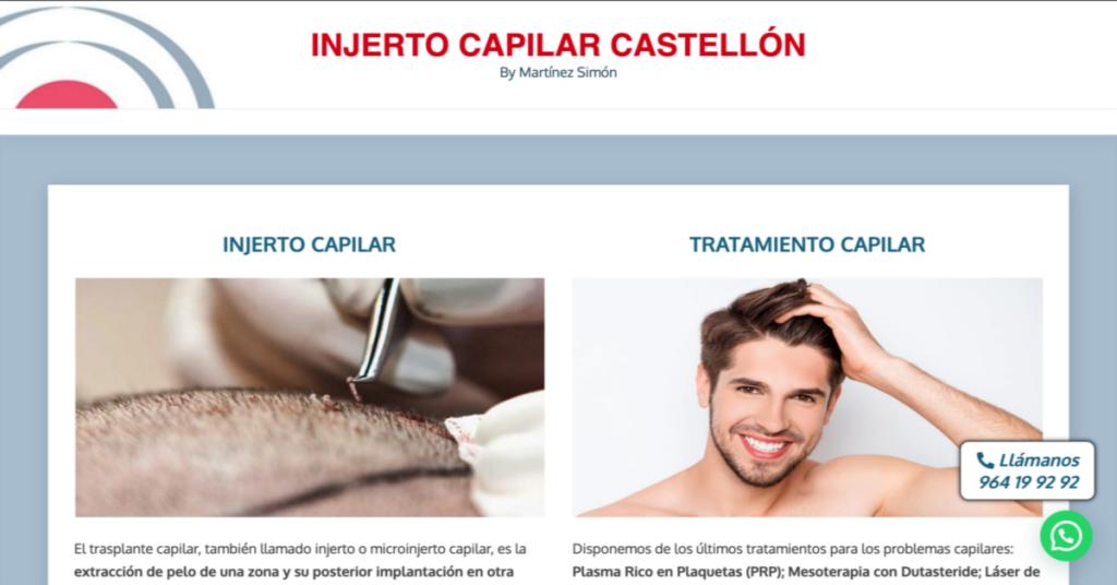 injerto-capilar-castellon-com-implante-microinjerto-trasplante-pelo