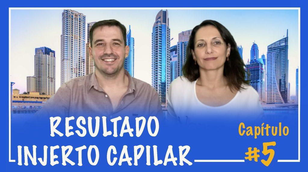 injerto-capilar-trasplante-pelo-implante-castellon