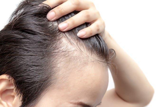 Efluvio-Telogeno-tratamiento-caida-cabello-hombres-injerto-capilar-castellon