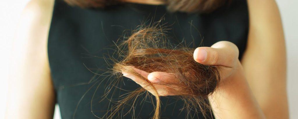 efluvio-telogeno-caida-cabello-castellon-injerto-capilar-trasplante-gente-guapa
